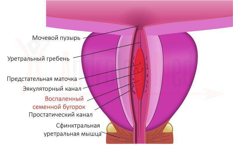 воспаления семенного бугорка, простаты