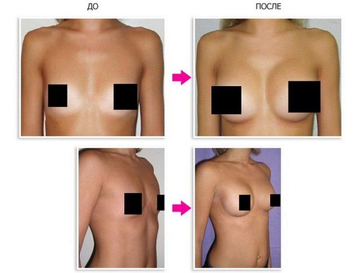 upsize крем для груди